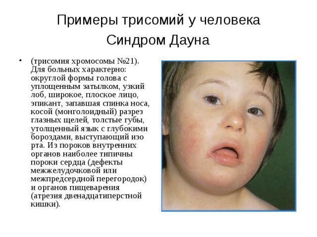 Примеры трисомий у человека Синдром Дауна (трисомия хромосомы №21). Для больных характерно: округлой формы голова с уплощенным затылком, узкий лоб, широкое, плоское лицо, эпикант, запавшая спинка носа, косой (монголоидный) разрез глазных щелей, толс…