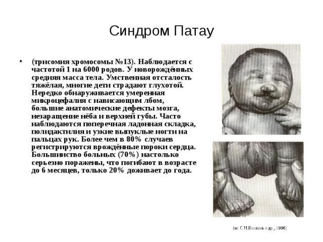 Синдром Патау (трисомия хромосомы №13). Наблюдается с частотой 1 на 6000 родов. У новорождённых средняя масса тела. Умственная отсталость тяжёлая, многие дети страдают глухотой. Нередко обнаруживается умеренная микроцефалия с нависающим лбом, больши…