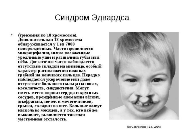 Синдром Эдвардса (трисомия по 18 хромосоме). Дополнительная 18 хромосома обнаруживается у 1 из 7000 новорождённых. Часто проявляется микроцефалия, низко посаженные уродливые уши и расщелина губы или нёба. Достаточно часто наблюдается отсутствие скла…