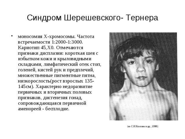 Синдром Шерешевского- Тернера моносомия X-хромосомы. Частота встречаемости 1:2000-1:3000. Кариотип 45,Х0. Отмечаются признаки дисплазии: короткая шея с избытком кожи и крыловидными складками, лимфатический отек стоп, голеней, кистей рук и предплечий…