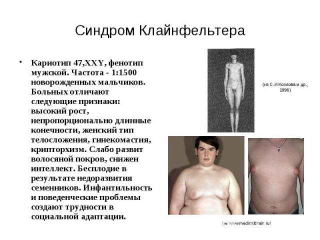 Синдром Клайнфельтера Кариотип 47,XXY, фенотип мужской. Частота - 1:1500 новорожденных мальчиков. Больных отличают следующие признаки: высокий рост, непропорционально длинные конечности, женский тип телосложения, гинекомастия, крипторхизм. Слабо раз…