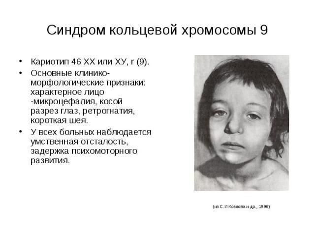 Синдром кольцевой хромосомы 9 Кариотип 46 ХХ или ХУ, r (9). Основные клинико-морфологические признаки: характерное лицо -микроцефалия, косой разрез глаз, ретрогнатия, короткая шея. У всех больных наблюдается умственная отсталость, задержка психомото…
