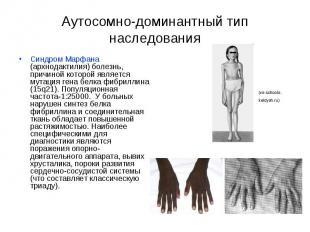 Аутосомно-доминантный тип наследования Синдром Марфана (архнодактилия) болезнь,