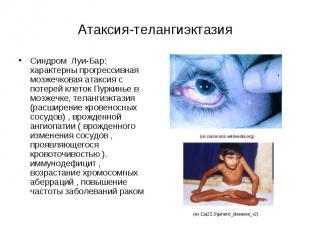Атаксия-телангиэктазия Синдром Луи-Бар: характерны прогрессивная мозжечковая ата