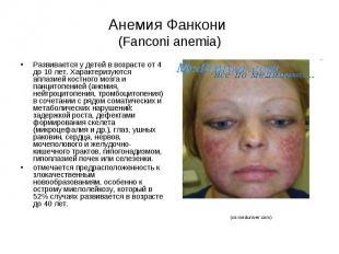 Анемия Фанкони (Fanconi anemia) Развивается у детей в возрасте от 4 до 10 лет. Х