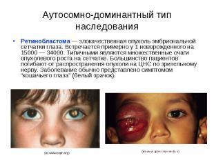 Аутосомно-доминантный тип наследования Ретинобластома — злокачественная опухоль