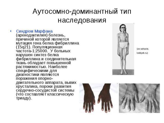 Аутосомно-доминантный тип наследования Синдром Марфана (архнодактилия) болезнь, причиной которой является мутация гена белка фибриллина (15q21). Популяционная частота-1:25000. У больных нарушен синтез белка фибриллина и соединительная ткань обладает…