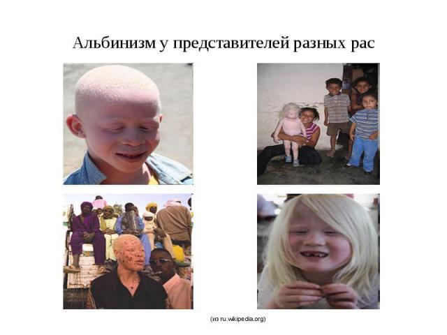 Альбинизм у представителей разных рас