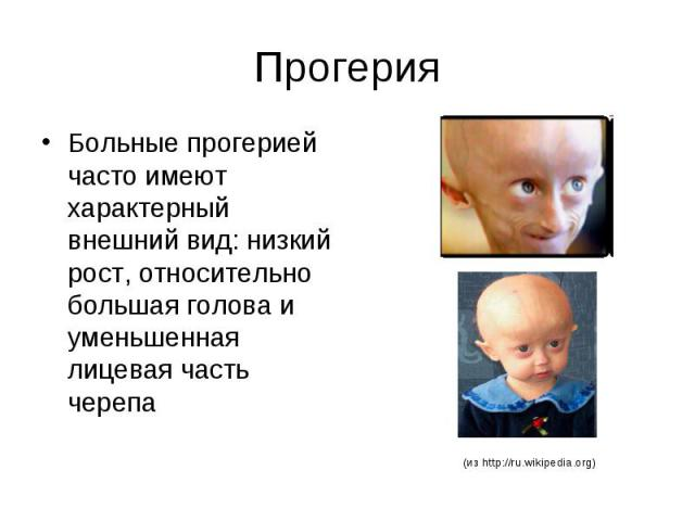 Прогерия Больные прогерией часто имеют характерный внешний вид: низкий рост, относительно большая голова и уменьшенная лицевая часть черепа