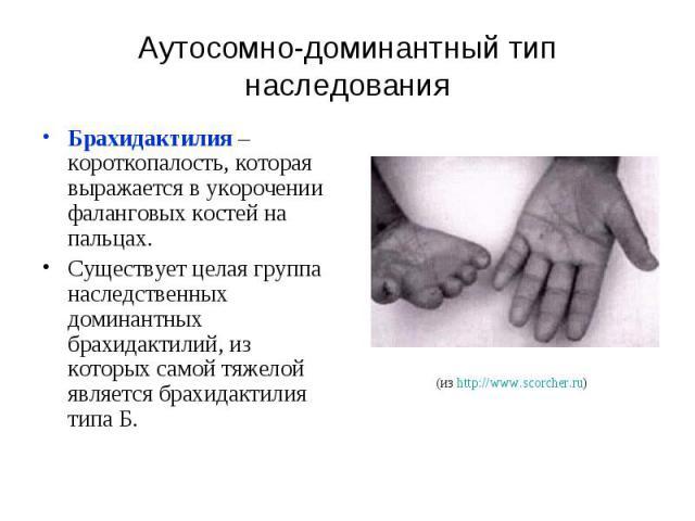 Аутосомно-доминантный тип наследования Брахидактилия – короткопалость, которая выражается в укорочении фаланговых костей на пальцах. Существует целая группа наследственных доминантных брахидактилий, из которых самой тяжелой является брахидактилия типа Б.
