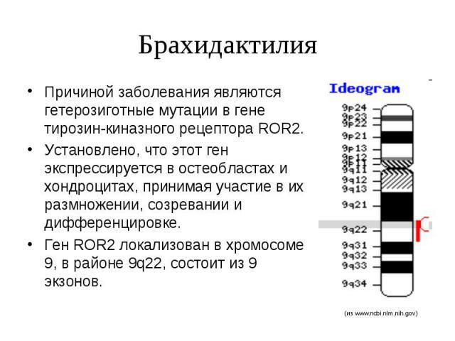 Брахидактилия Причиной заболевания являются гетерозиготные мутации в гене тирозин-киназного рецептора ROR2. Установлено, что этот ген экспрессируется в остеобластах и хондроцитах, принимая участие в их размножении, созревании и дифференцировке. Ген …