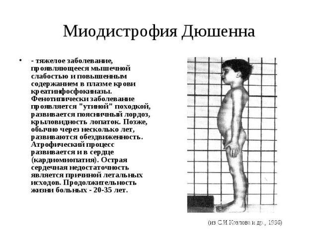 """Миодистрофия Дюшенна - тяжелое заболевание, проявляющееся мышечной слабостью и повышенным содержанием в плазме крови креатинфосфокиназы. Фенотипически заболевание проявляется """"утиной"""" походкой, развивается поясничный лордоз, крыловидность …"""