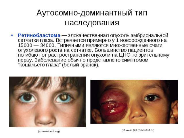 Аутосомно-доминантный тип наследования Ретинобластома — злокачественная опухоль эмбриональной сетчатки глаза. Встречается примерно у 1 новорожденного на 15000 — 34000. Типичными являются множественные очаги опухолевого роста на сетчатке. Большинство…