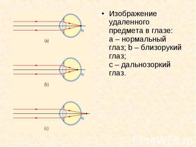 Изображение удаленного предмета в глазе: a–нормальный глаз; b–близорукий глаз; с–дальнозоркий глаз. Изображение удаленного предмета в глазе: a–нормальный глаз; b–близорукий глаз; с–&n…