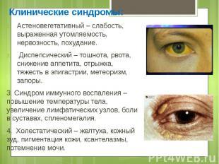 Клинические синдромы: Клинические синдромы: Астеновегетативный – слабость, выраж