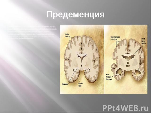 Предеменция Первые симптомы часто путают с проявлениями старения или реакцией на стресс. Наиболее заметно расстройство памяти, проявляющееся в затруднении при попытке вспомнить недавно заученные факты и в неспособности усвоить новую информацию. Мало…