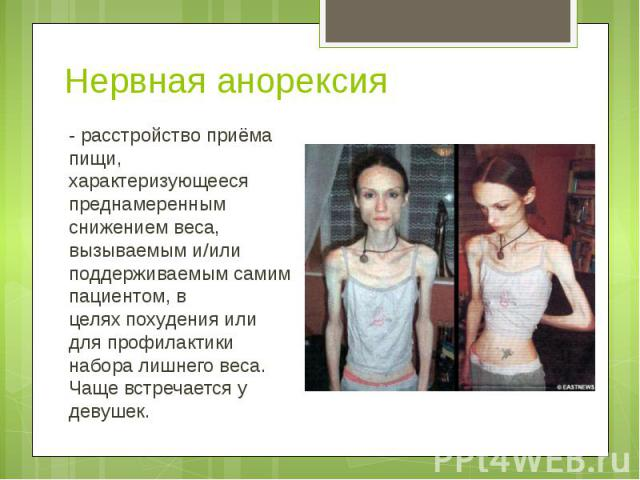Диета при анорексии 10 кг за 10 дней