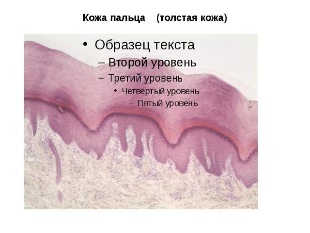Кожа пальца (толстая кожа)