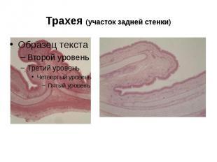 Трахея (участок задней стенки)