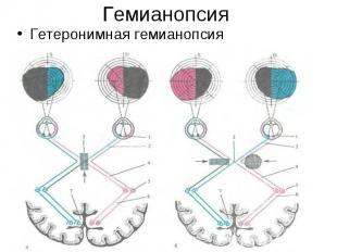 Гетеронимная гемианопсия Гетеронимная гемианопсия