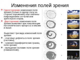 Односторонние изменения поля зрения (только в одном глазу на стороне поражения)