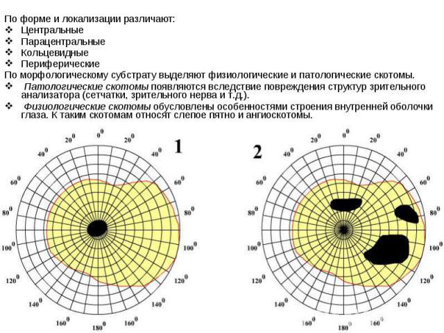По форме и локализации различают: Центральные Парацентральные Кольцевидные Периферические По морфологическому субстрату выделяют физиологические и патологические скотомы. Патологические скотомыпоявляются вследствие повреждения структур з…