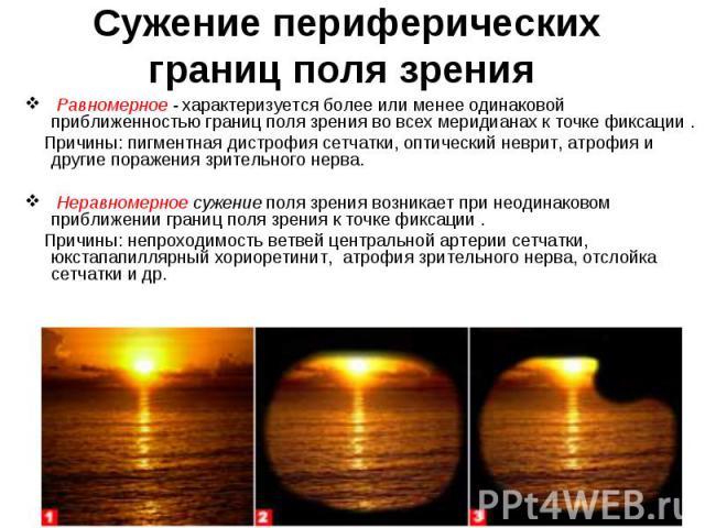 Равномерное-характеризуется более или менее одинаковой приближенностью границ поля зрения во всех меридианах к точке фиксации . Равномерное-характеризуется более или менее одинаковой приближенностью границ поля зр…
