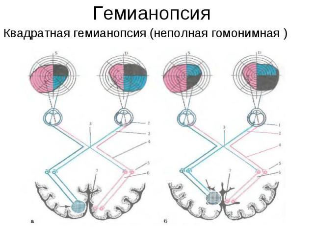 Квадратная гемианопсия (неполная гомонимная ) Квадратная гемианопсия (неполная гомонимная )