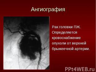 Рак головки ПЖ. Рак головки ПЖ. Определяется кровоснабжение опухоли от верхней б