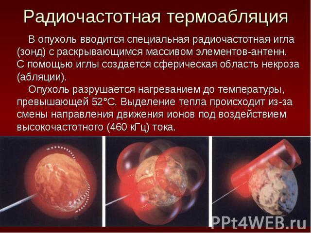 В опухоль вводится специальная радиочастотная игла В опухоль вводится специальная радиочастотная игла (зонд) с раскрывающимся массивом элементов-антенн. С помощью иглы создается сферическая область некроза (абляции). Опухоль разрушается нагреванием …