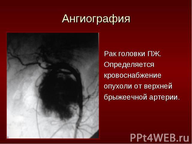 Рак головки ПЖ. Рак головки ПЖ. Определяется кровоснабжение опухоли от верхней брыжеечной артерии.