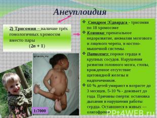 Анеуплоидия