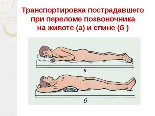 Транспортировка пострадавшего при переломе позвоночника на животе (а) и спине (б