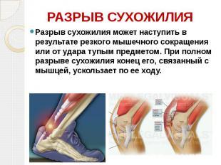 РАЗРЫВ СУХОЖИЛИЯ Разрыв сухожилия может наступить в результате резкого мышечного
