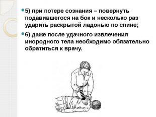 5)при потере сознания – повернуть подавившегося на бок и несколько раз уда