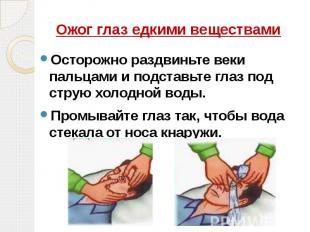 Ожог глаз едкими веществами Осторожно раздвиньте веки пальцами и подставьте глаз