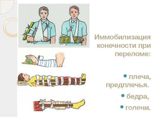 Иммобилизация конечности при переломе: Иммобилизация конечности при переломе: плеча, предплечья. бедра, голени.