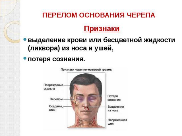 ПЕРЕЛОМ ОСНОВАНИЯ ЧЕРЕПА Признаки выделение крови или бесцветной жидкости (ликвора) из носа и ушей, потеря сознания.