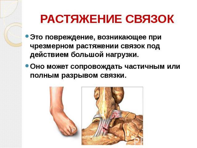 РАСТЯЖЕНИЕ СВЯЗОК Это повреждение, возникающее при чрезмерном растяжении связок под действием большой нагрузки. Оно может сопровождать частичным или полным разрывом связки.