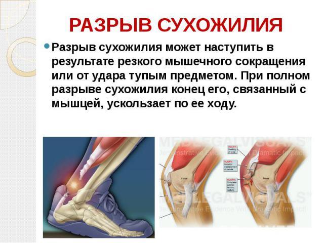 РАЗРЫВ СУХОЖИЛИЯ Разрыв сухожилия может наступить в результате резкого мышечного сокращения или от удара тупым предметом. При полном разрыве сухожилия конец его, связанный с мышцей, ускользает по ее ходу.