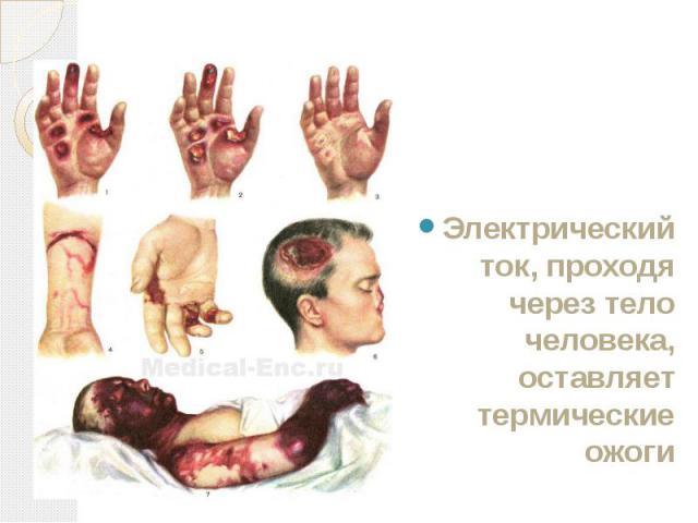 Электрический ток, проходя через тело человека, оставляет термические ожоги Электрический ток, проходя через тело человека, оставляет термические ожоги