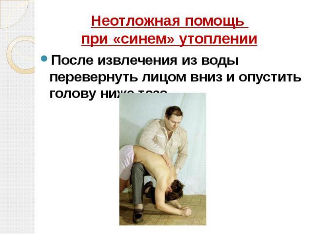 Неотложная помощь при «синем» утоплении После извлечения из воды перевернуть лицом вниз и опустить голову ниже таза.