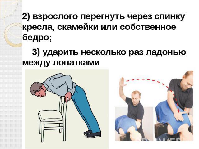 2)взрослого перегнуть через спинку кресла, скамейки или собственное бедро; 2)взрослого перегнуть через спинку кресла, скамейки или собственное бедро; 3)ударить несколько раз ладонью между лопатками