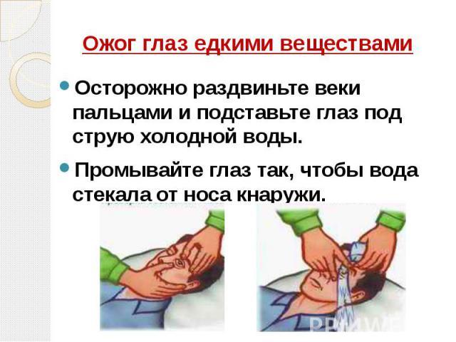 Ожог глаз едкими веществами Осторожно раздвиньте веки пальцами и подставьте глаз под струю холодной воды. Промывайте глаз так, чтобы вода стекала от носа кнаружи.