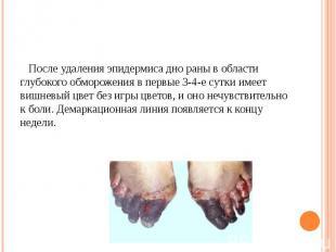 После удаления эпидермиса дно раны в области глубокого обморожения в первые 3-4-