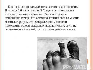 Как правило, на пальцах развивается сухая гангрена. До конца 2-й или к началу 3-