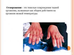 Отморожение - это тяжелые повреждения тканей организма, вызванные как общим дейс
