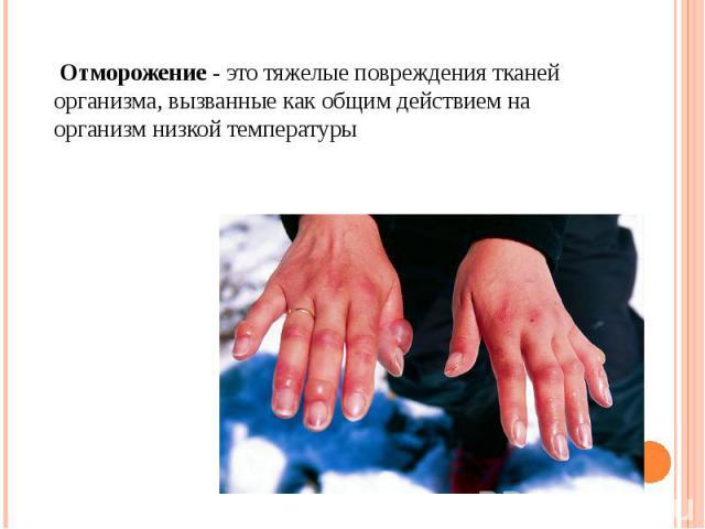 Отморожение - это тяжелые повреждения тканей организма, вызванные как общим действием на организм низкой температуры Отморожение - это тяжелые повреждения тканей организма, вызванные как общим действием на организм низкой температуры