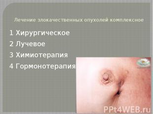 Лечение злокачественных опухолей комплексное 1 Хирургическое 2 Лучевое 3 Химиоте