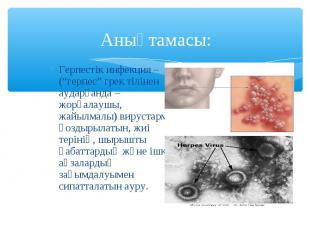 """Герпестік инфекция – (""""герпес"""" грек тілінен аударғанда – жорғалаушы, жайылмалы)"""